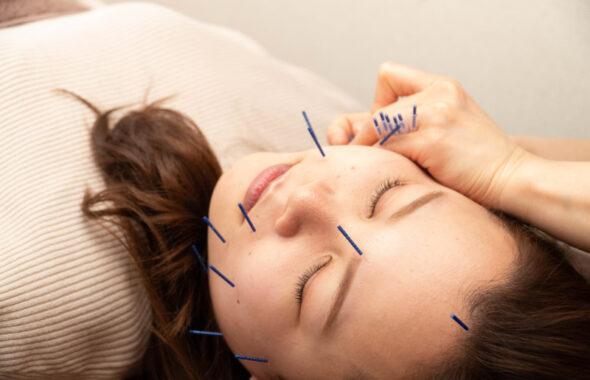 宇都宮市の整骨院・鍼灸院なら葵はりきゅう整骨院の美容鍼とは?期待できる効果・施術方法について
